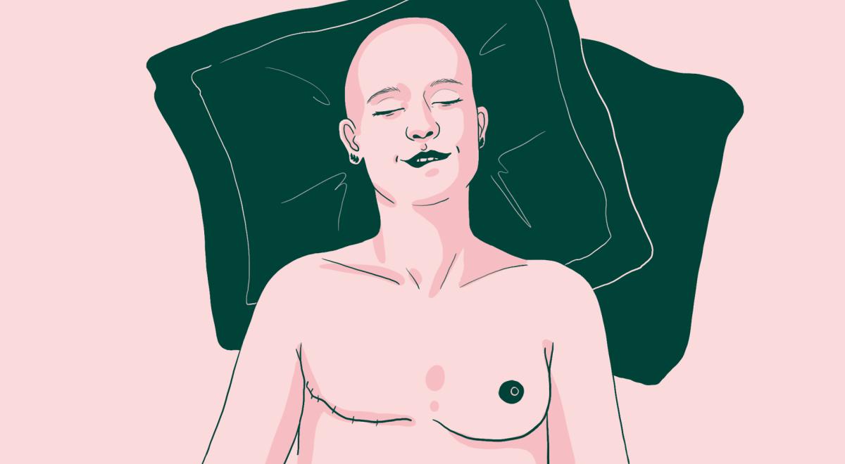Femme allongée vue de haut, dont on voit la cicatrice du sein droit, elle a le crane chauve et exprime la tête sur des cousins un visage de plaisir.